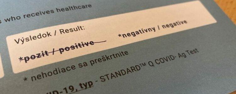 Výsledok testovania na COVID-19 - 13. 2. 2021 - Ilustračná fotografia